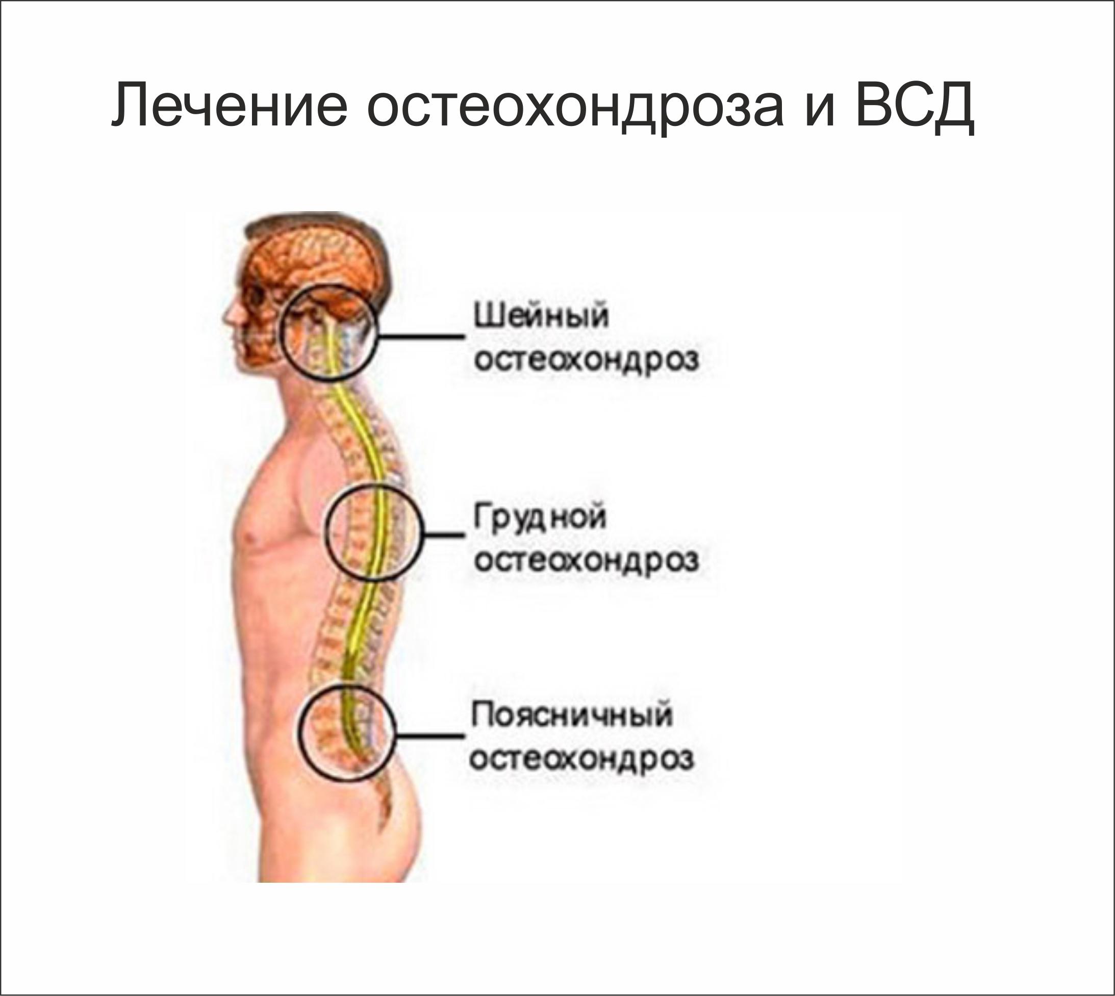 Лечение остеохондроза поясничного отдела у детей